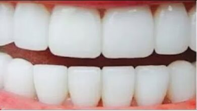وصفة سحرية بسيطة لتبييض الأسنان كالثلج في يوم واحد